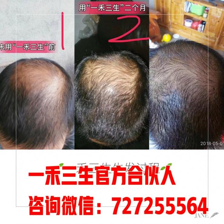 一禾三生用了不掉头发!不要做头皮初老症患者!